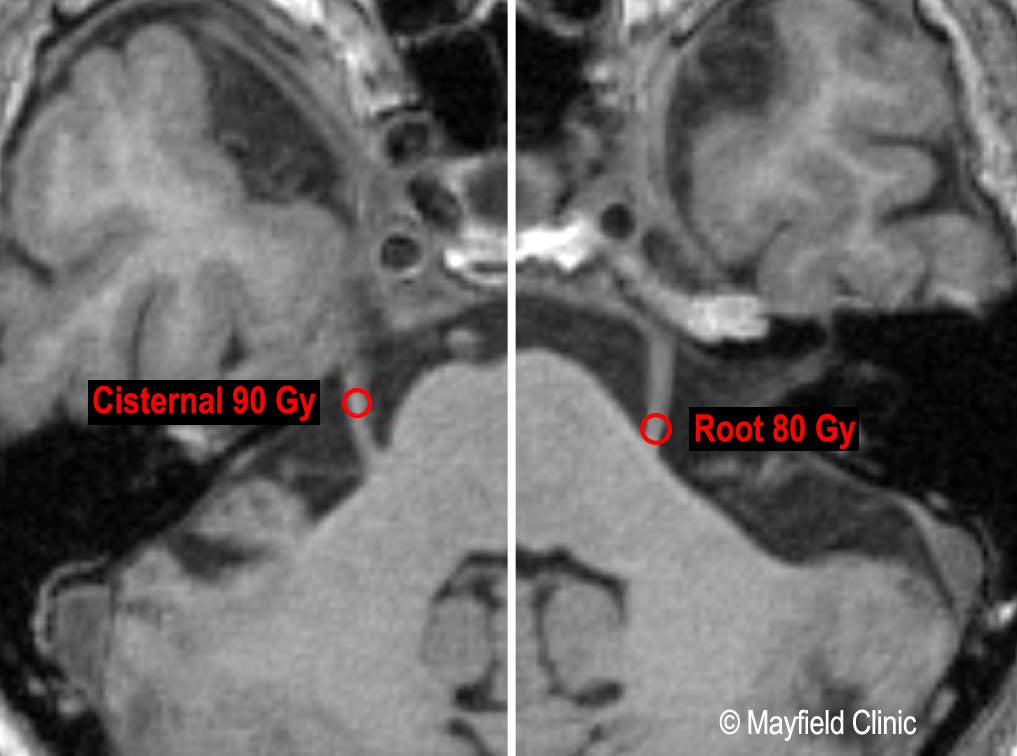 MRI depicting radiosurgery targeting of the trigeminal nerve