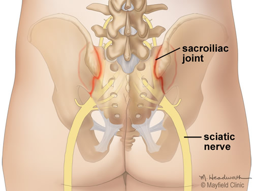 Illustration of the hip bones, sacrum and nerves, highlighting inflamed SI joints