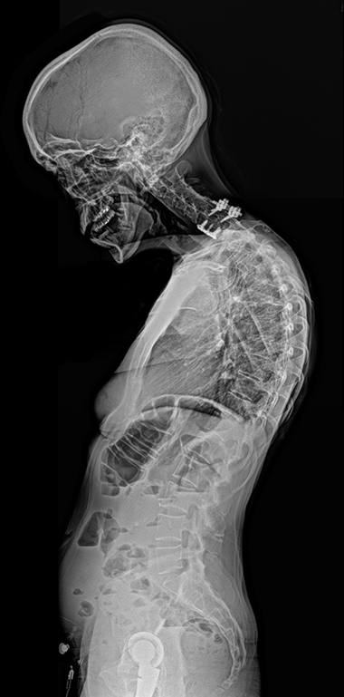 Julie scan showing the deteriorating condition of her neck/spine