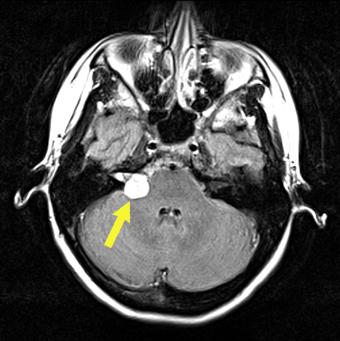 MRI: pre-op