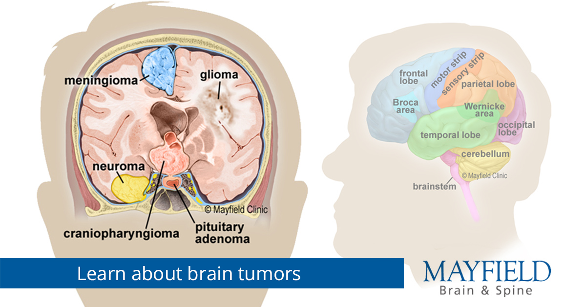 steroids for secondary brain cancer